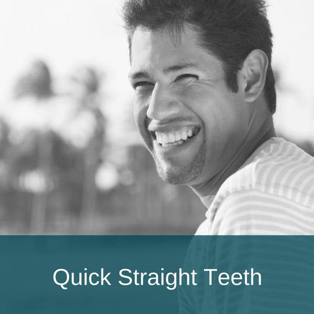quick-straight-teeth
