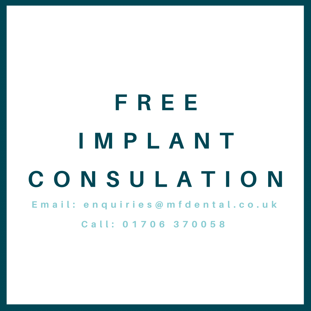 Free Dental Implant Consulation