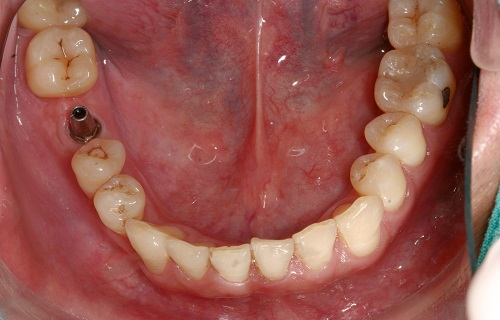 Single-Implant