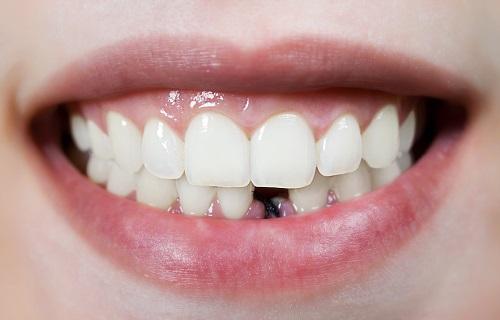 teeth-implants